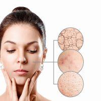 Jak działa frakcjonowanie laserowe skóry?
